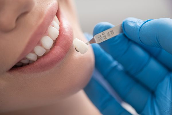 Porcelain Veneers Or Dental Crowns: What Do I Need?