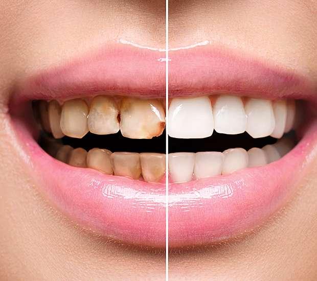 Las Vegas Dental Implant Restoration