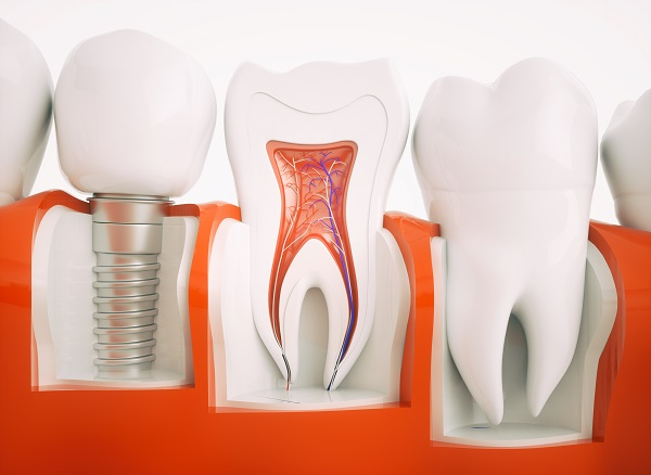 All-on-4 Dental Implants Las Vegas, NV