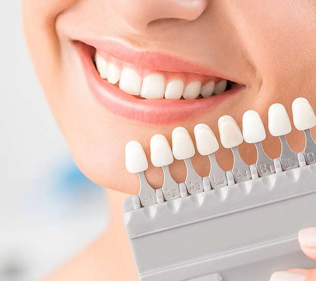 Las Vegas Dental Veneers and Dental Laminates