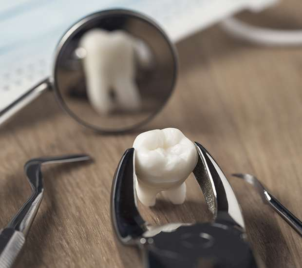 Las Vegas When Is a Tooth Extraction Necessary
